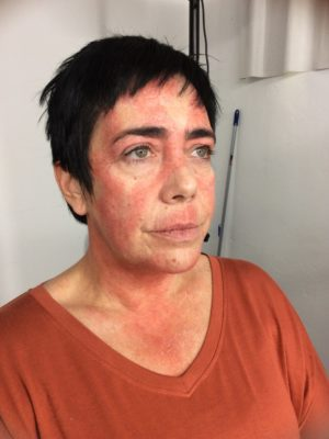Skin disease make-up for a pharmaceutical company commercial. 2016